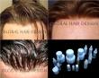Protesi  capelli in lace e pellicola